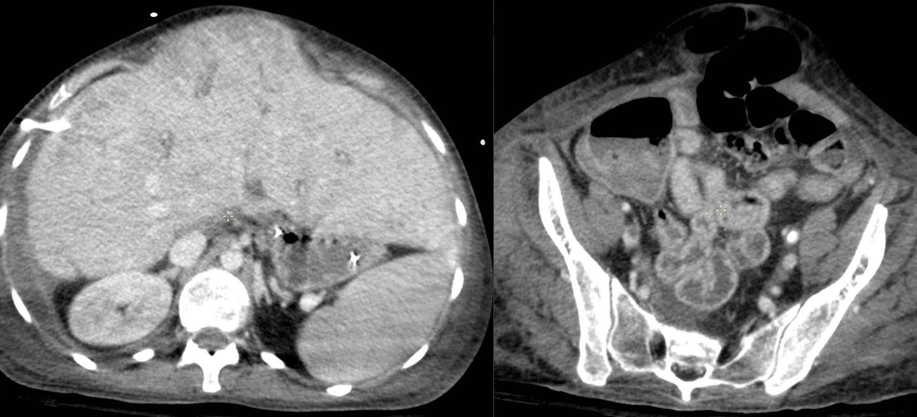 radiologie abdomen aigu