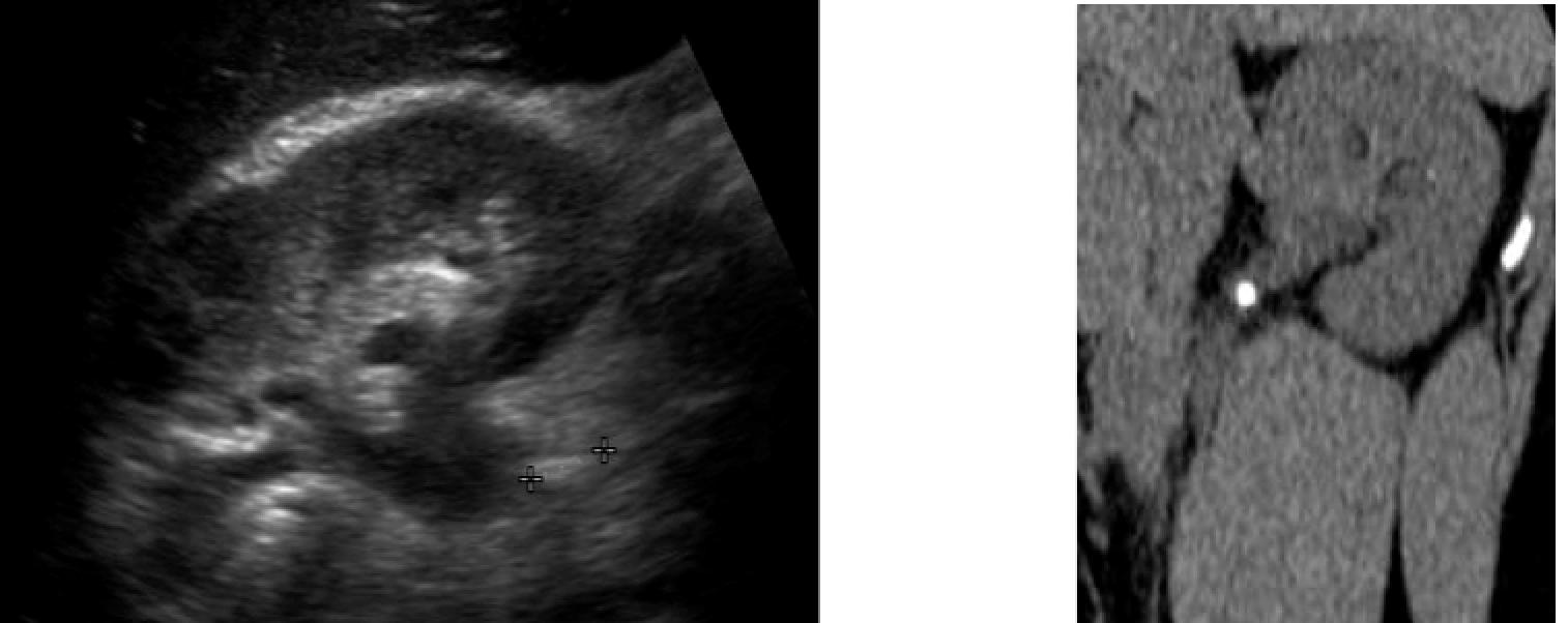 US vs CT en cas de colique néphrétique